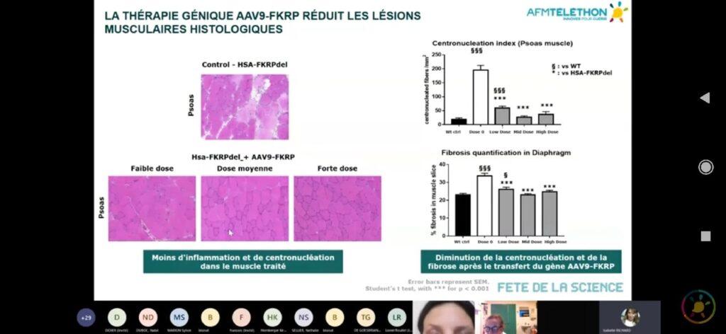 На изображении слайд со сравнением изменений мышечной ткани при КПМД 2i после введения генной терапии AAV9-FKRP. По сравнению с контрольным изображением сверху, на котором видно сильное повреждение ткани, снизу на трёх изображениях видна улучшенная структура. Слева направо изображение изменений со слабой дозой препарата, средней и сильной. Соответственно и улучшение слабое, среднее и очень хорошее.